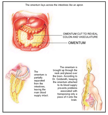 Omentum used to treat Alzheimer's